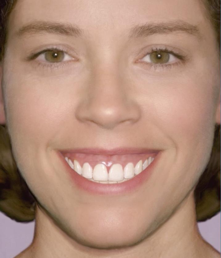 A gummy smile