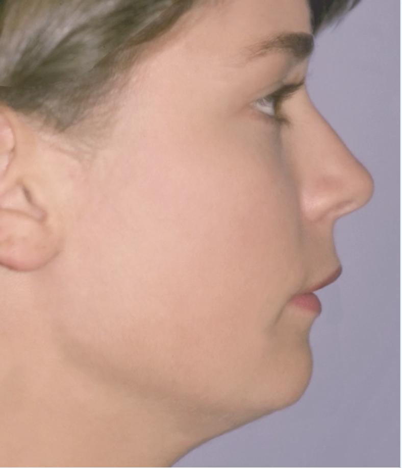 Smaller chin