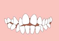 Narrow smile