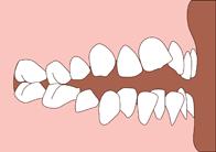 Open bite