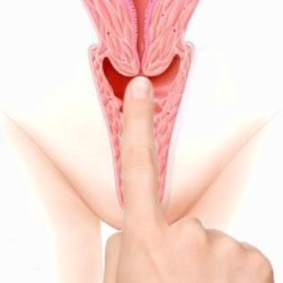 High cervix - long vaginal canal