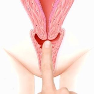 Medium cervix - medium vaginal canal