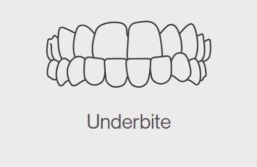 Underbite
