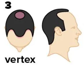 Pattern 3 Vertex