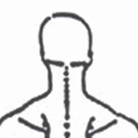 Nakkesmerter