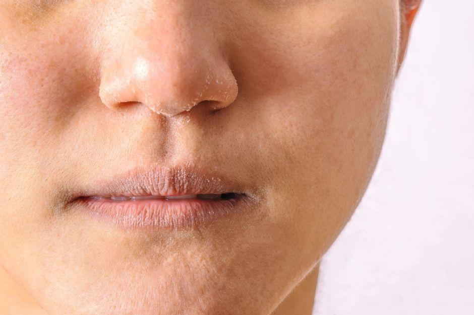 Seca: Tiende a ser áspera, poros cerrados, sin elasticidad, descamación.
